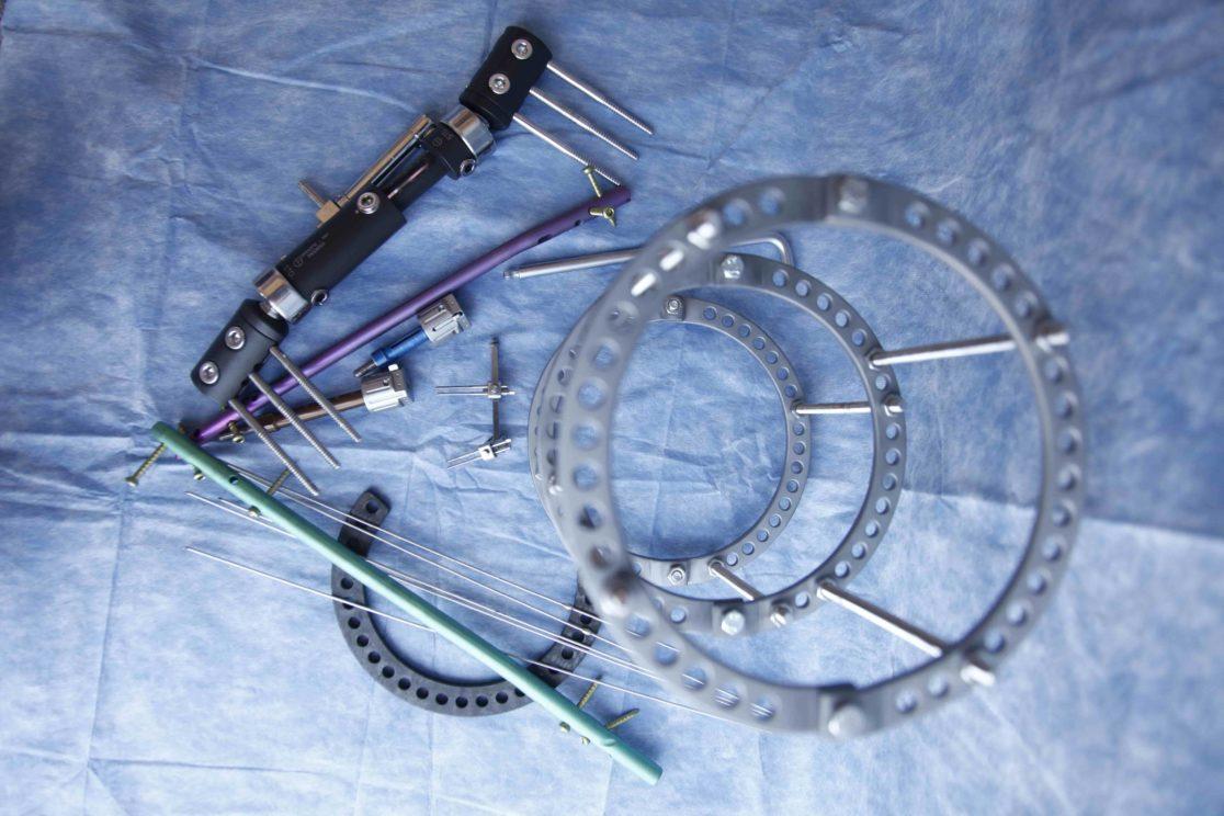 Equipment - Limb Lengthening YCLLR