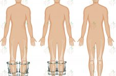 Limb-Lengthening-Services-O-Type-Curve