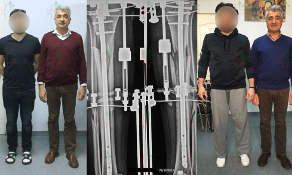 Patient-from-Poland-limb-lengthening-after-the-treatment