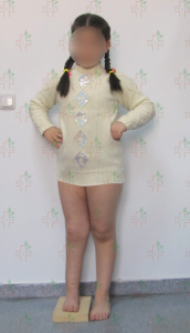 blog-limb-lengthening-congenital-pseudoarthrosis-ycllr1