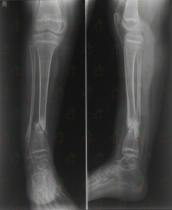 blog-limb-lengthening-congenital-pseudoarthrosis-ycllr2