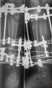 blog-limb-lengthening-congenital-pseudoarthrosis-ycllr3