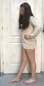 blog-limb-lengthening-congenital-pseudoarthrosis-ycllr5