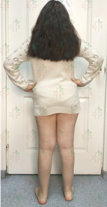 blog-limb-lengthening-congenital-pseudoarthrosis-ycllr6