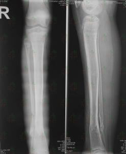 blog-limb-lengthening-congenital-pseudoarthrosis-ycllr7