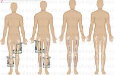 YCLLR-cross-lateral-tibia-femur-lengthening-LATN_CLTFL-armenia